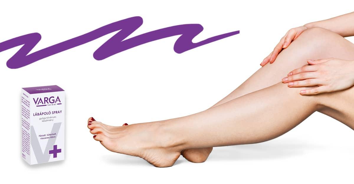 Nem kell többé rejtegetned a lábad: 5 gyógynövény a makacs visszér ellen | Femcafe
