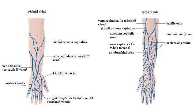 visszér diagramok Khitaryan visszér