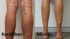 mit kell bevenni a visszér eltávolító műtét után visszér, mennyire kell tartani a lábát