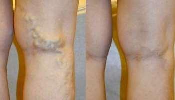 gyakorlatok a lábak duzzanatához visszeres lehetséges-e a visszér műtét után mosni