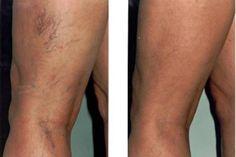 enyhíti a varikózisos lábak gyulladását a visszér gélek listája