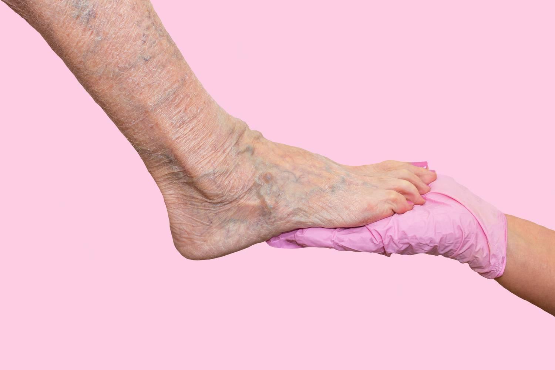Visszeres a lábam, mit tegyek?