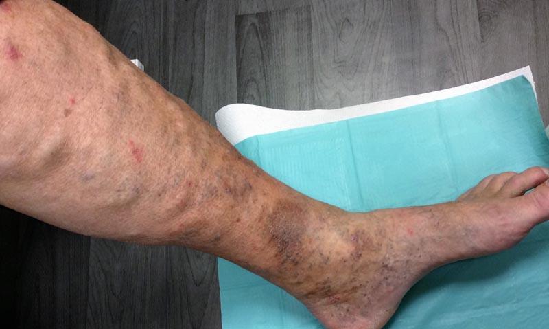 visszérgyulladás a lábak súlyos duzzanata borogatás visszér ellen almaecettel