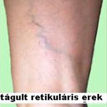 a telangiectasias és az intradermális visszér mikroszkleroterápiája