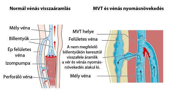 mélyvénás trombózis visszér