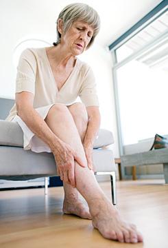 a visszér által érintett felületes vénák thrombophlebitis