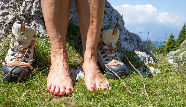 hogyan kenje be a lábát a visszér megelőzésére