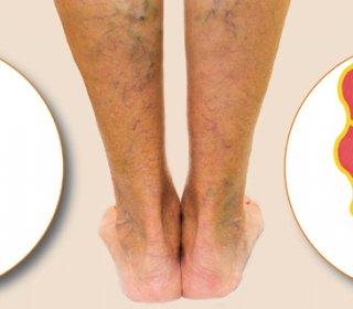 Visszér a lábak hogyan lehet segíteni, Visszeres láb kezelése komplex terápiával