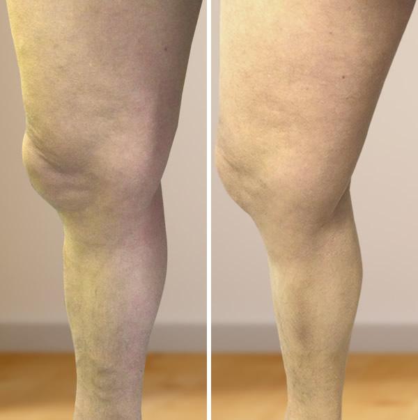 műtét visszér a lábakon video