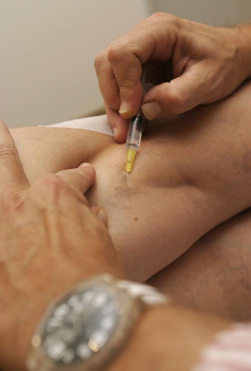 Visszérbetegség - Milyen mellékhatásai vannak a kezeléseknek?