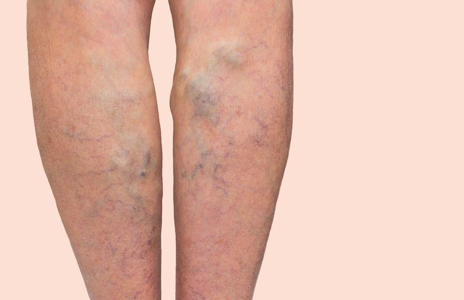 zúzódás a visszér lábán