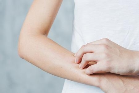 Ekcéma a lábakon - fényképek, tünetek és kezelés - Masszázs