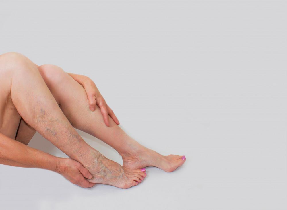 visszérrel a zúzódások megjelennek a lábakon mi a mellékvénás visszér