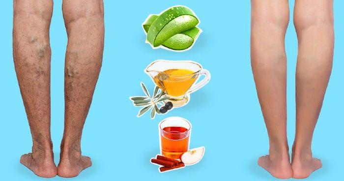 mit kell inni a lábak visszérbetegségéből