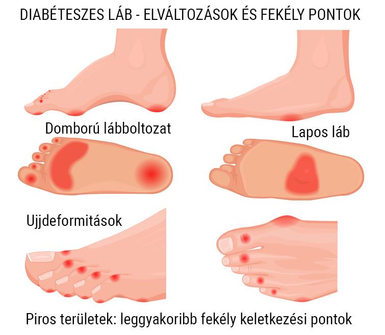 a lábak varikózisának tünetei és kezelésük