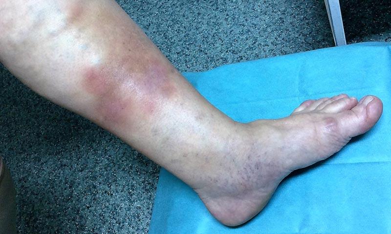 a lábakon lévő visszerek kezelése
