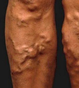 kórházi visszér eltávolítása pontok a lábakon visszérrel