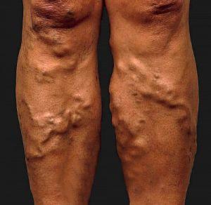 thrombophlebitis visszereket kezelünk