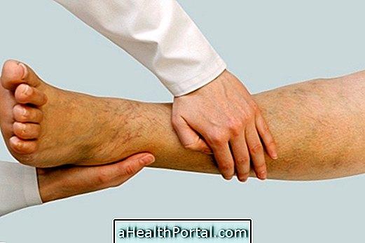 visszér megelőzésére szolgáló harisnya tevékenységek visszeres lábak számára