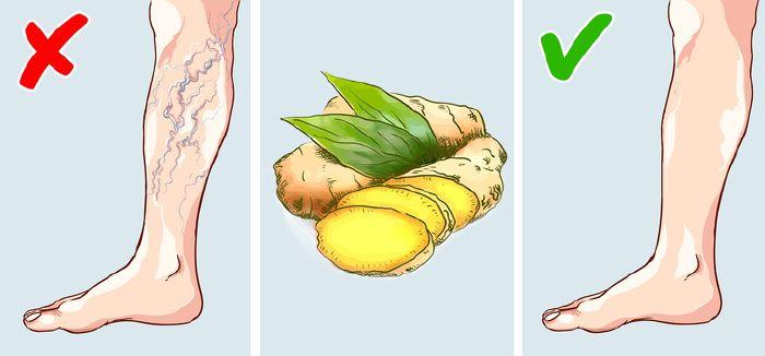 Visszérbetegség - a mozgás a legjobb gyógymód - Dr. Zátrok Zsolt blog, Visszér a lapos láb miatt