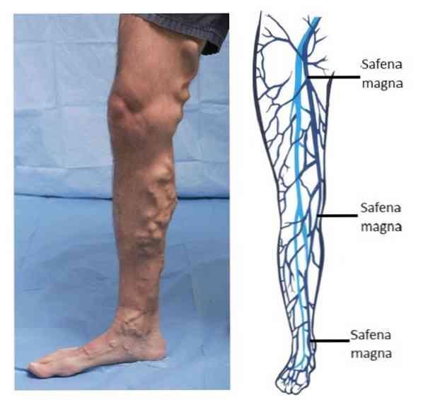 Rehabilitáció a műtét után, a vénák eltávolítására a lábakon a varikózus vénákkal