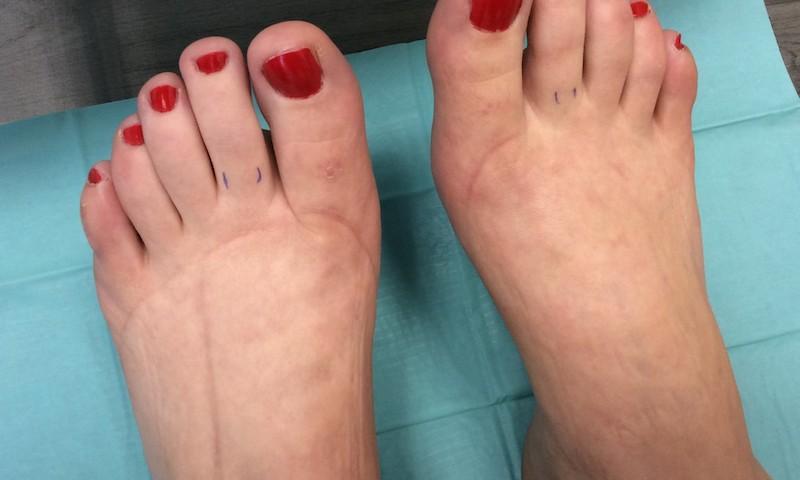kötöző lábak visszér