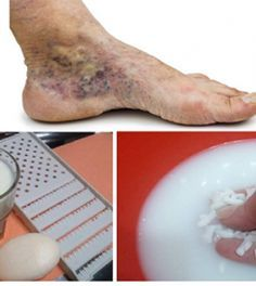 gyógymód a lábak számára a visszér ellen