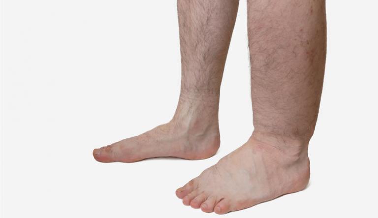 visszérrel a láb megduzzadt