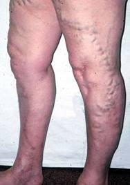 visszerek a lábakon nőknél következmények