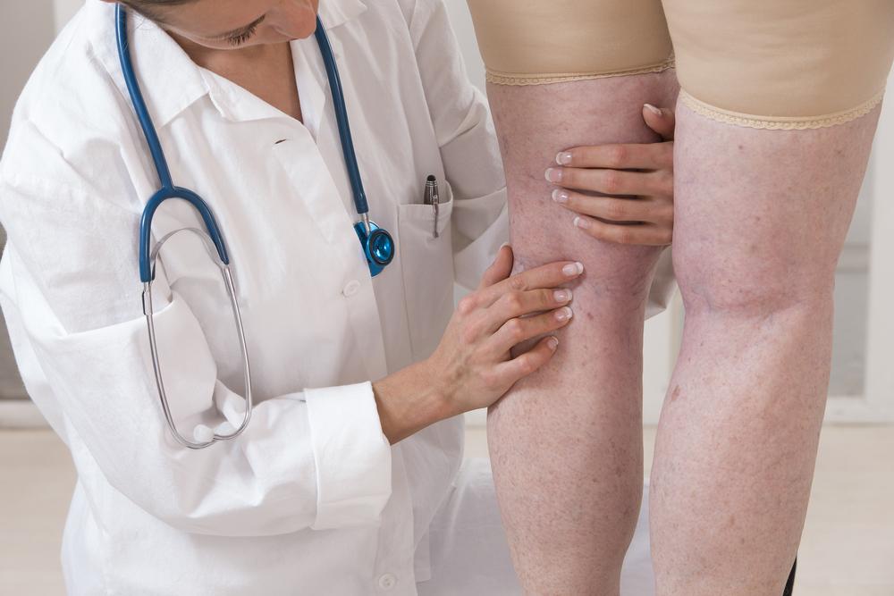 visszér a lábak fotótünetei és kezelése