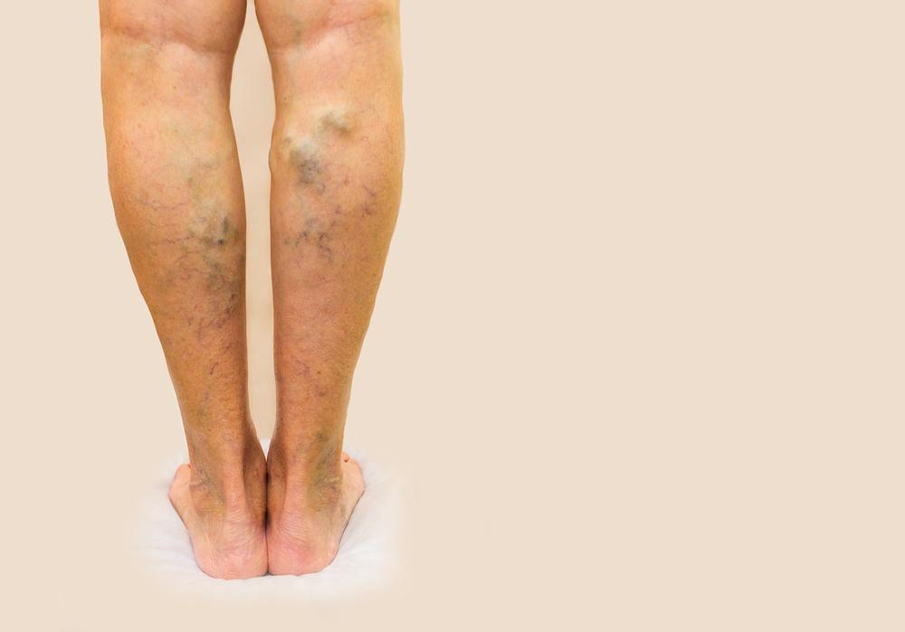 barna foltok az alsó lábszáron visszérrel visszér kék foltok a lábakon