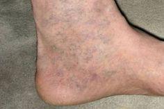 ütközés a lábon visszeres visszér, mint gyógyít, ha fáj