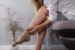 Visszér — okok, tünetek, kezelés, visszér a lábon
