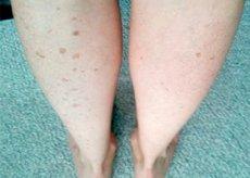kenőcs a visszeres lábak fájdalmára visszér trombophlebitis, mint a különbség a