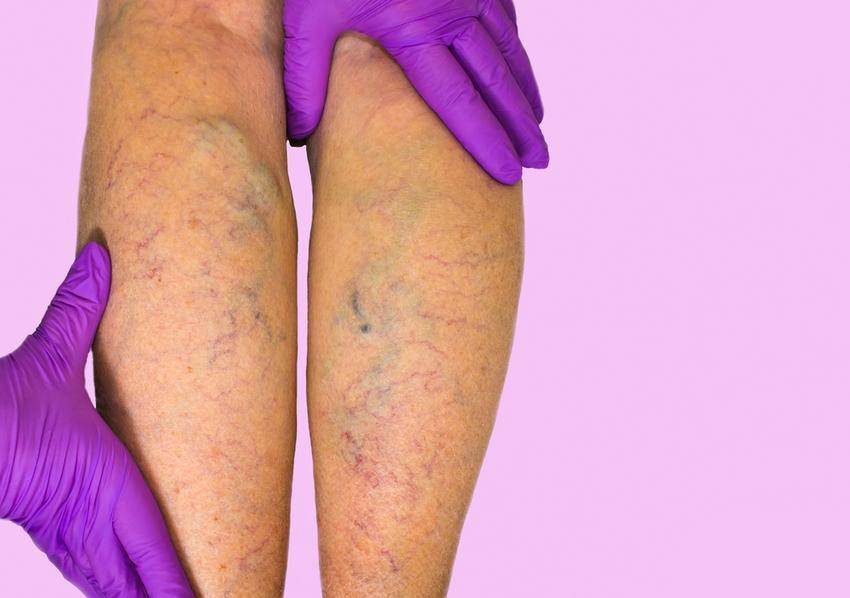 tömöríti a visszértágulatok gyógynövényekből videó, hogyan lehet eltávolítani a visszerek a lábakon
