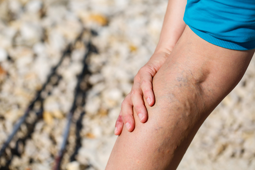 visszér, a láb fáj