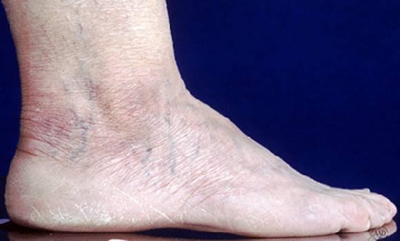 láb hematoma visszér