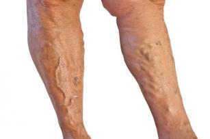 A belső láb varikózisa Járás az alsó végtagok varikózisával