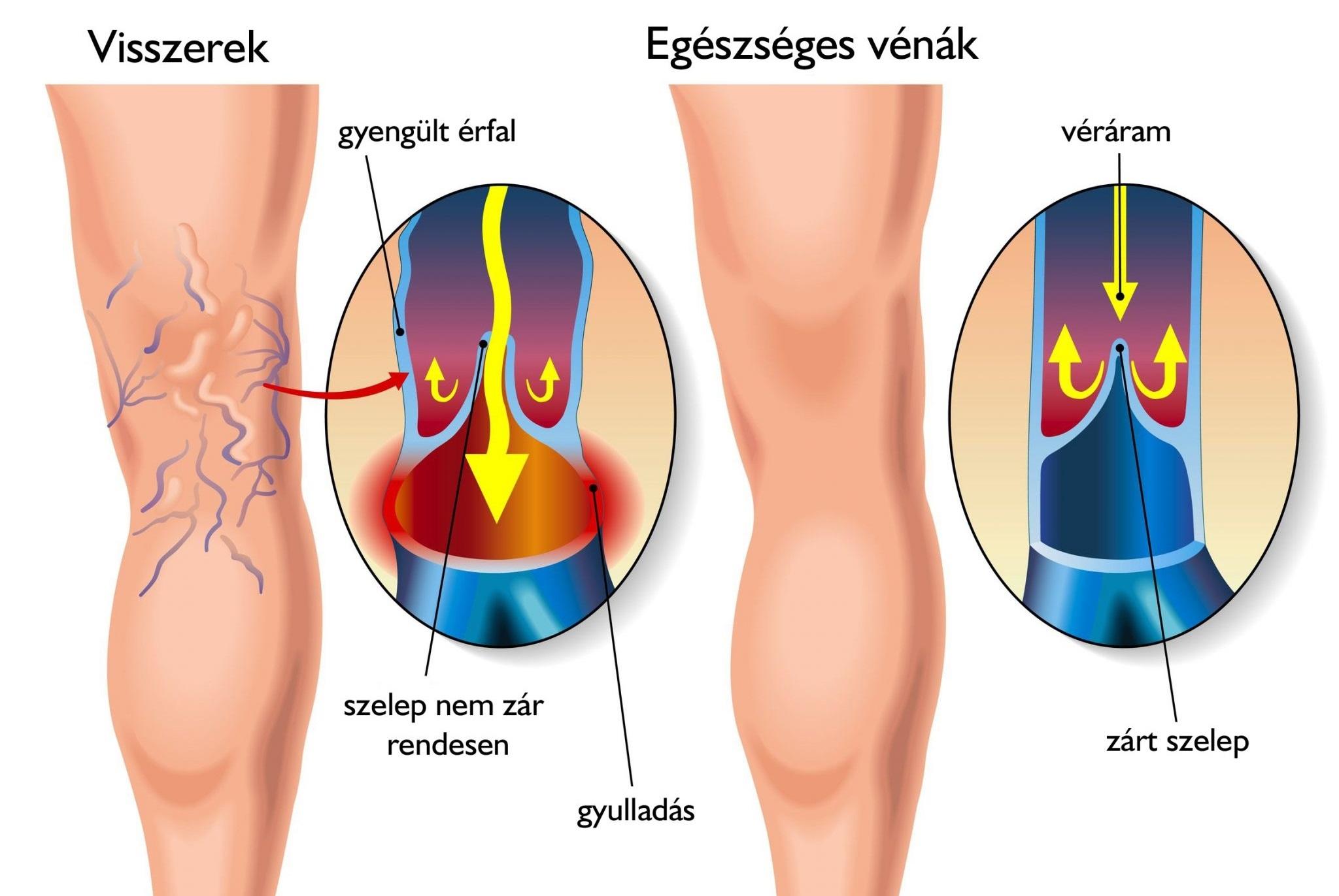 visszér a lábakon tünetek következményei