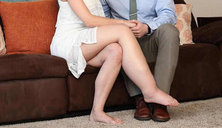visszérrel a lábak fájhatnak