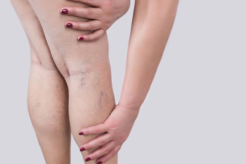 műtét a visszér eltávolítására lézeres felülvizsgálatokkal visszér a lábakon homeopátia kezelés