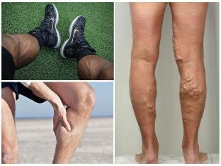hogyan lehet felismerni a visszerek a lábakon fotó