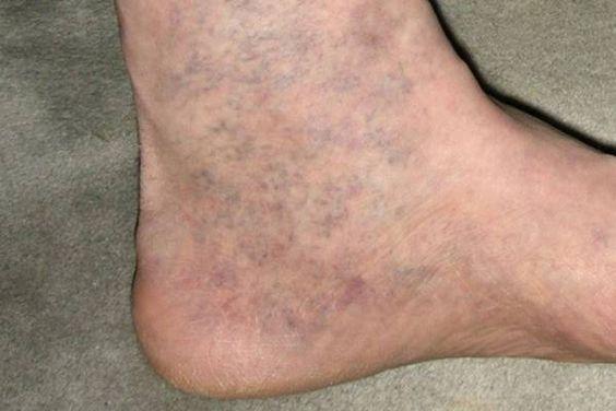 folt az alsó lábszáron visszeres
