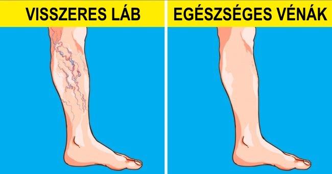 jóga a visszerek a lábakban a legjobb tabletták az alsó végtagok visszér ellen
