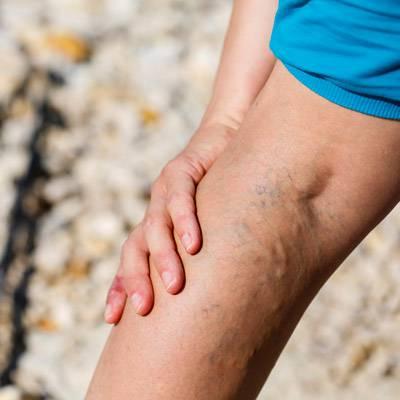 hogyan lehet eltávolítani a visszerek a lábakon gyakorlatok visszeres viszketés okoz
