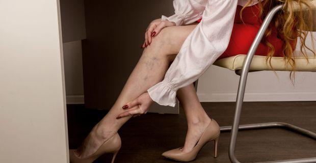 a láb zsibbad a visszerek terhesség alatt a modellnek visszérbetegségei vannak