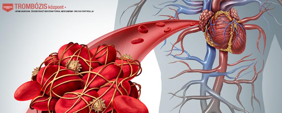 Gyomor- és bélvérzés tünetei és kezelése - HáziPatika
