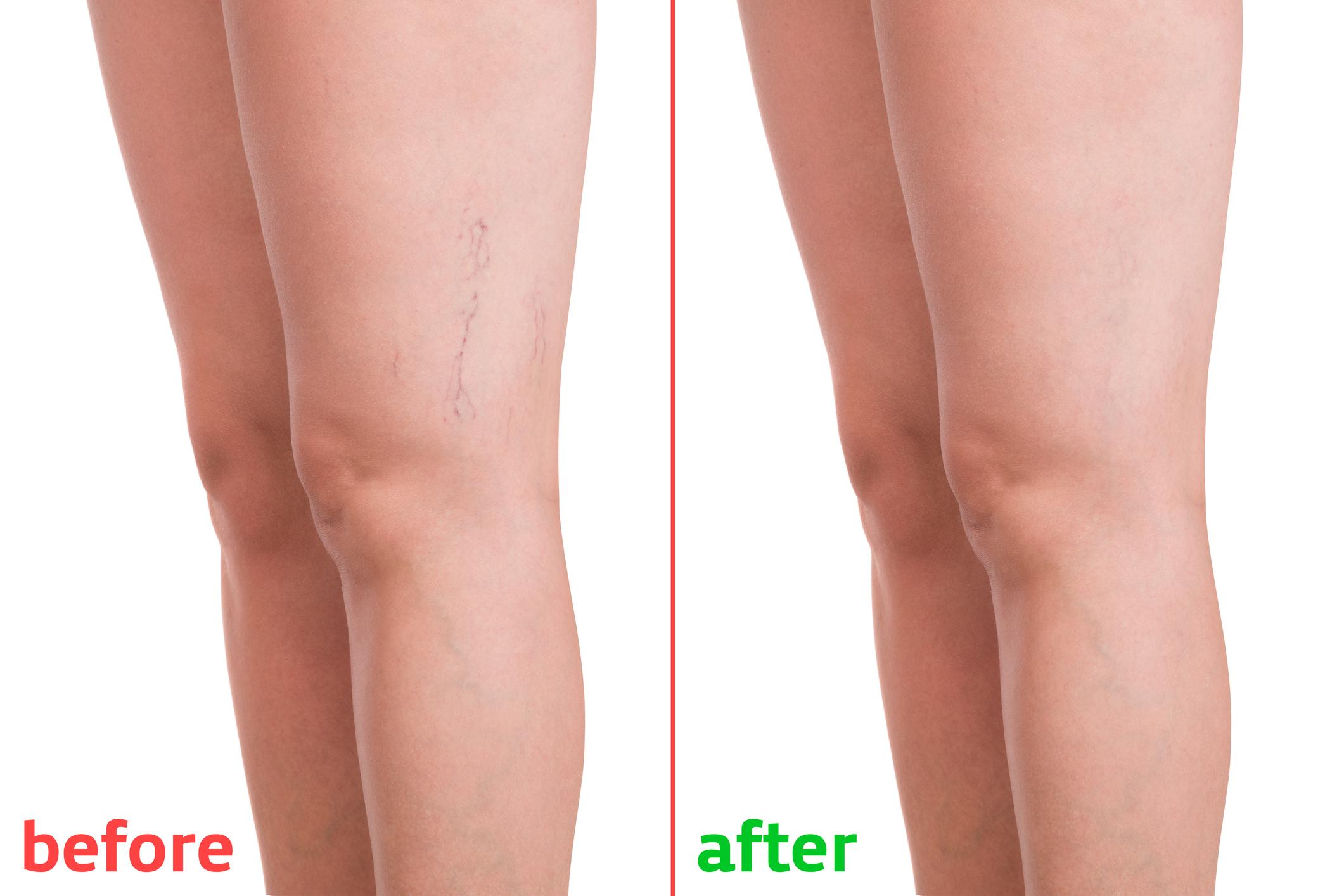 a láb visszerek miatt fáj, mit kell tenni