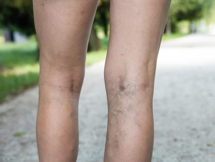a lábak feketedése a visszerektől
