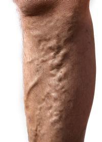 a visszér kialakulása okozza visszér, de a lábam nem fáj